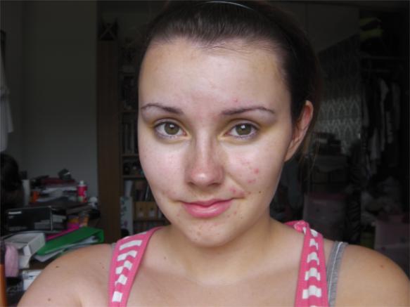 similar skin condition